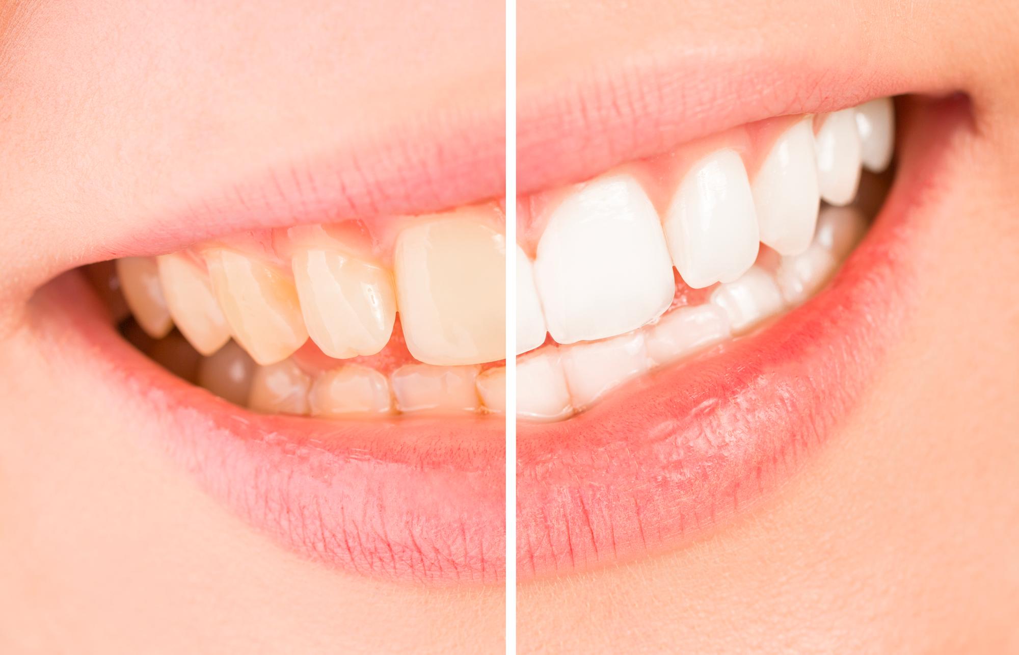 Sbiancamento Dentale a Brescia