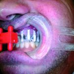 Impianti dentali senza osso a Brescia EAGLE GRID