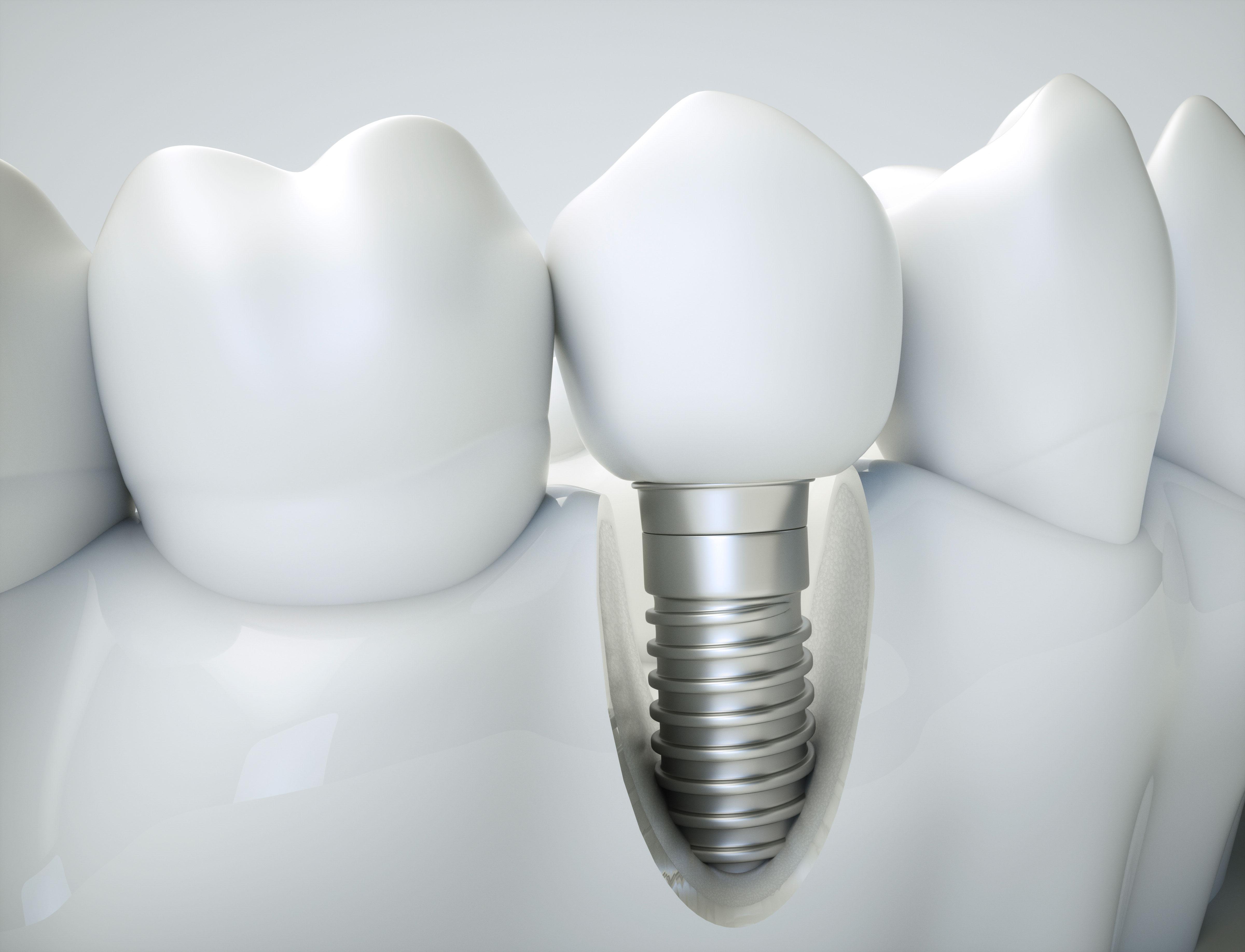 Impianti dentali elettrosaldati a Brescia