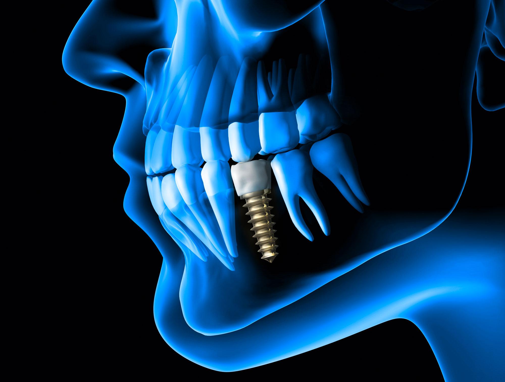 impianti dentali carico immediato brescia