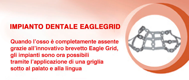 impianti dentali eaglegrid