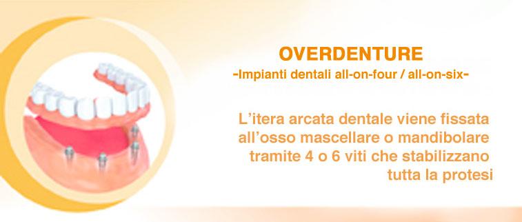impianti dentali arcata intera