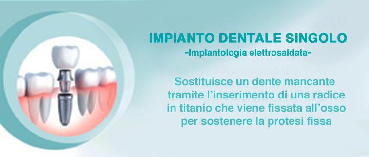 impianti dentali singoli
